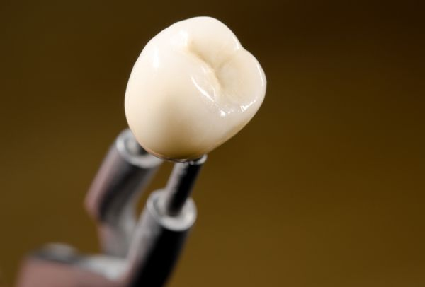 The Dental Crown Process: Repairing Teeth